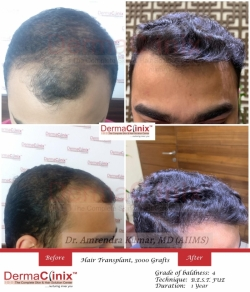All You Need To Know About Hair Transplant in Delhi