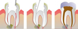Benefit from root canal therapy and save your infected tooth